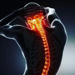 spine exam